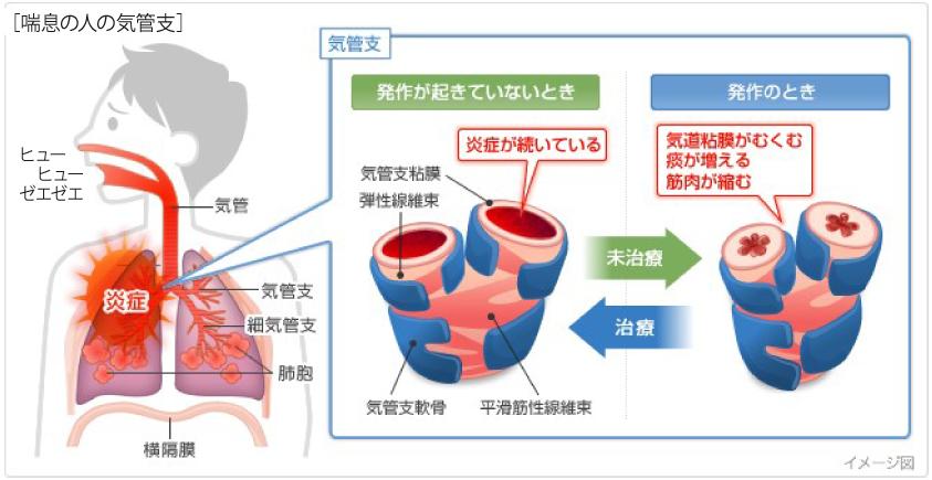 喘息の人の気管支